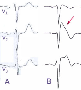 "Electrocardiograma característic del la síndrome Brugada. ""Brugada EKG Schema"" by J. Heuser JHeuser - Own work. Licensed under CC BY-SA 3.0 via Wikimedia Commons."